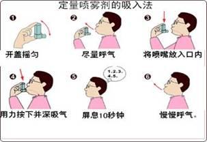 气喘病的治疗方法_图解哮喘治疗吸入装置的使用 - 合理用药 - 达州市中心医院
